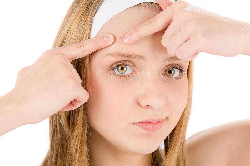 Os melhores nutrientes na prevenção da acne